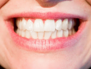 Le blanchiment dentaire