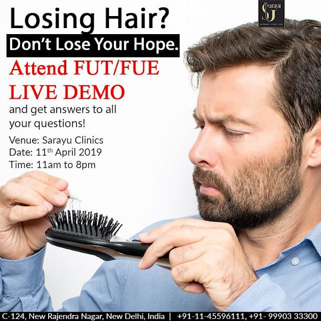 best hair transplant doctor in rajendra nagar, delhi, india