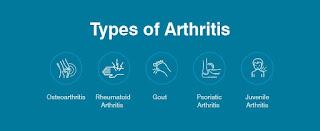 arthritis home remedy treatment