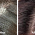 Remove Your Head Lice and Dandruff Naturally by These Very Cheap and Easy Method