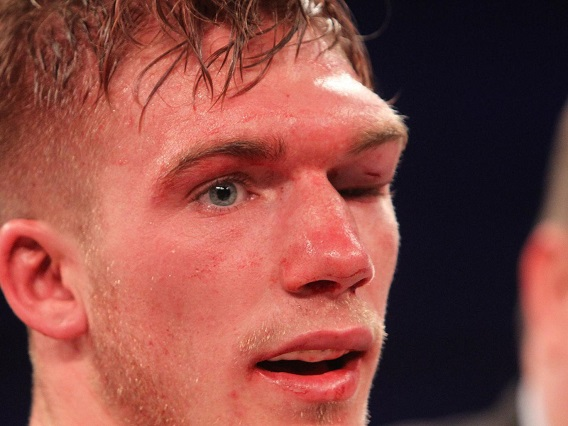 Boxer Beaten Unconscious By Eubank Jr Wakes From Coma