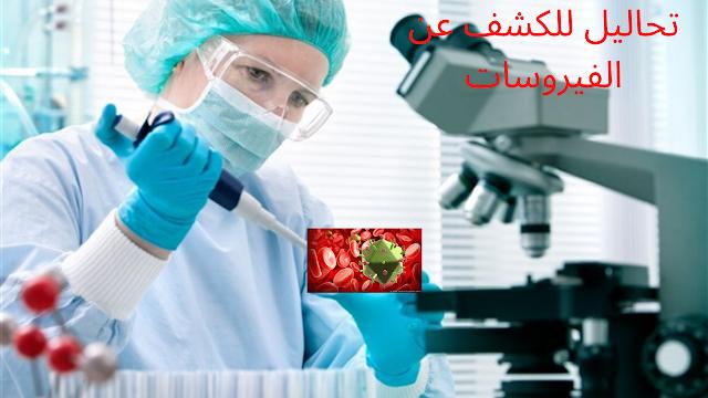 تحاليل الدم و البول اللازمة للتحقق من وجود عدوي فيروسية وفيروس كرونا