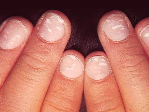 Be careful if you see such a scar on the nail, you may be a victim of this disease