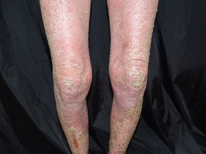 紅皮症乾癬(Erythrodermic psoriasis)
