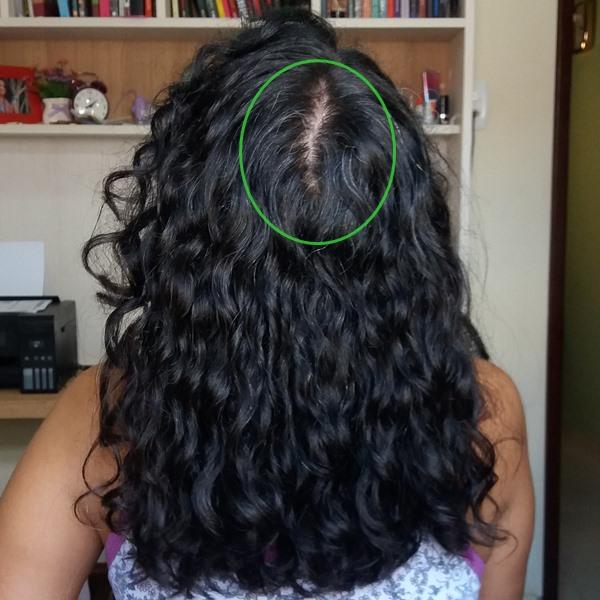 A-minha-queda-capilar-com-falhas-no-couro-cabeludo