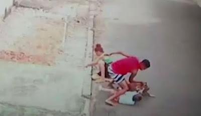 Bocah empat tahun diserang anjing pitbull
