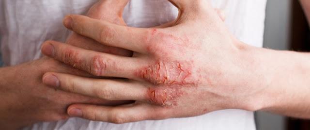 الأكـزيما و علاجها