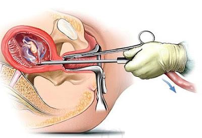 Những tai biến sau nạo phá thai