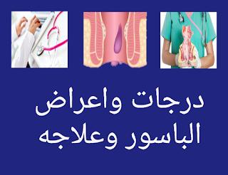 درجات واعراض الباسور وعلاجه