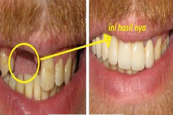 Penemuan Baru: Hanya Dalam 3 Minggu Gigi Ompongmu Dapat Tumbuh Kembali