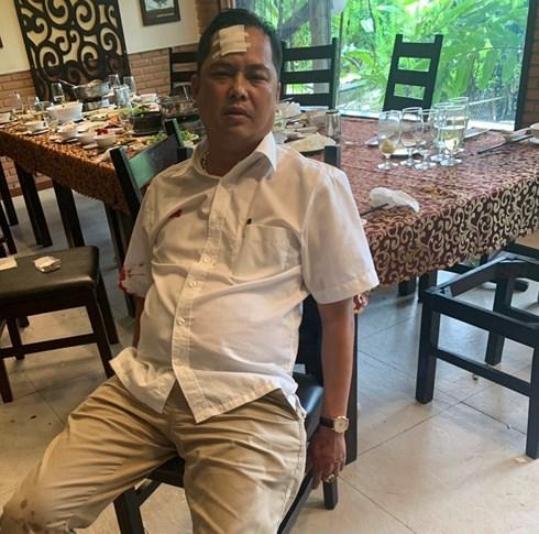 Vụ vây xe chở công an ở Đồng Nai: Người bị đánh vỡ trán gửi yêu cầu khởi tố vụ án