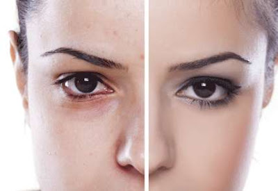 Cara Alami Menghilangkan Komedo di Hidung Dengan Cepat