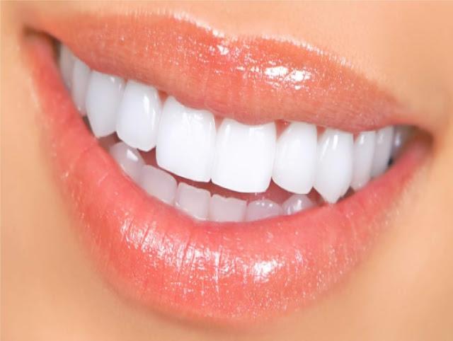 diş kürü