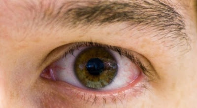 Red Dot In Eye, Causes And Remedy