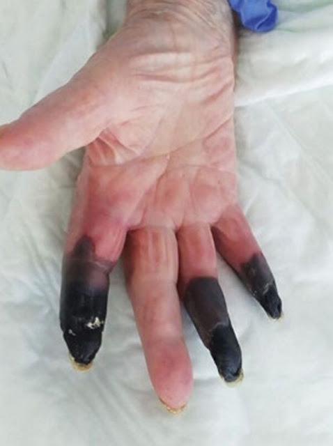 Coronavirus patient fingers turn black in shocking new 'severe manifestation' of virus