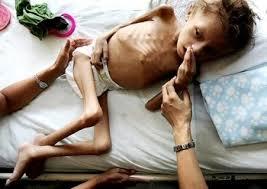 El hambre se convirtió en un verdugo para los lactantes en Venezuela