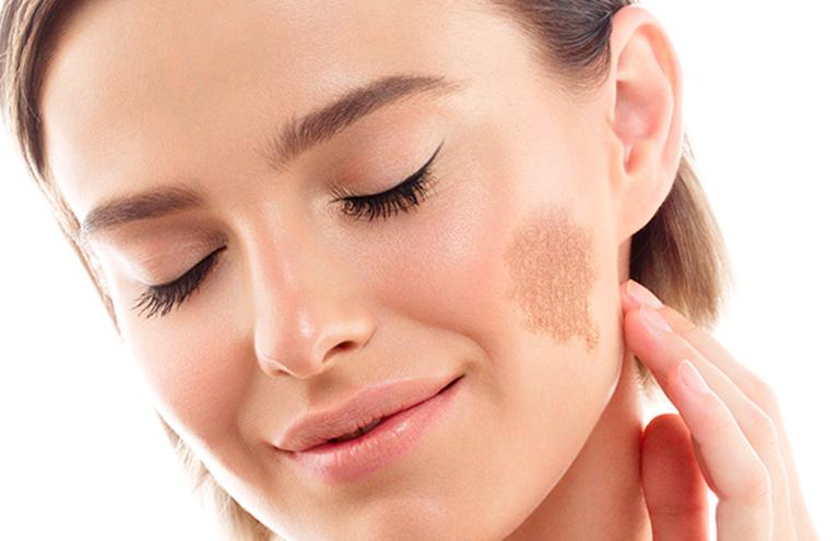 Saiba os tipos de manchas de pele e como tratá-las