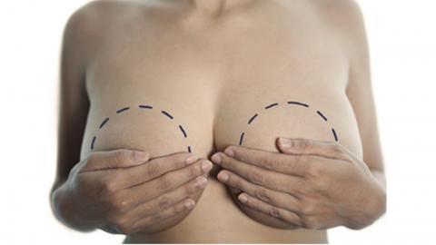 La operación del pecho el ajuste de la persona