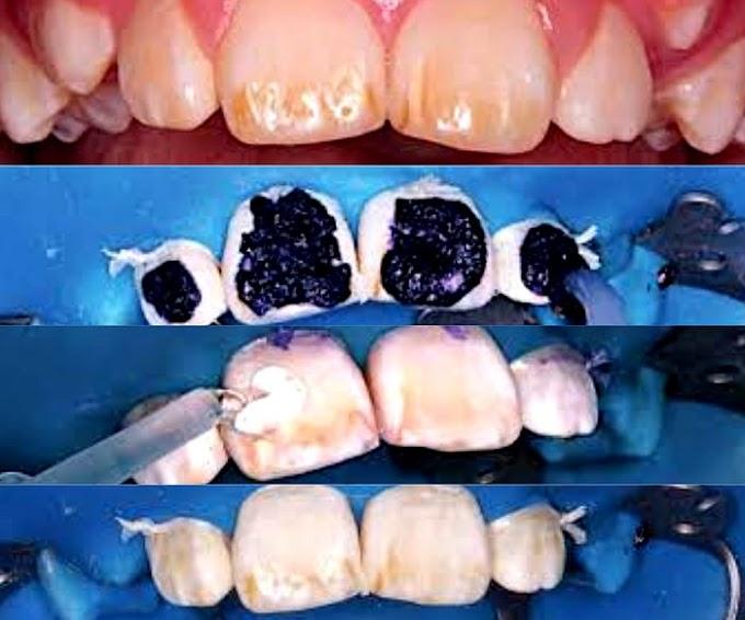 CASO CLÍNICO: Tratamiento mínimamente invasivo en un paciente pediátrico con fluorosis dental mediante el uso de microabrasión