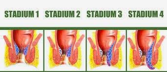 Stadium Ambeien Atau Wasir