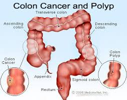 Colon Cancer & Polyp