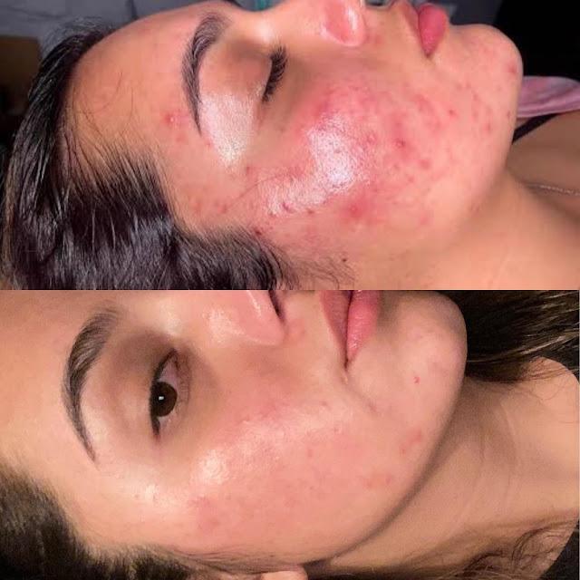 3 Masques à base de l'argile pour se débarrasser de l'acné