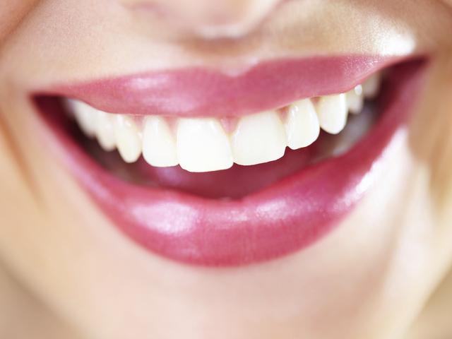 Najbolji recepti za izbjeljivanje zuba (II dio)