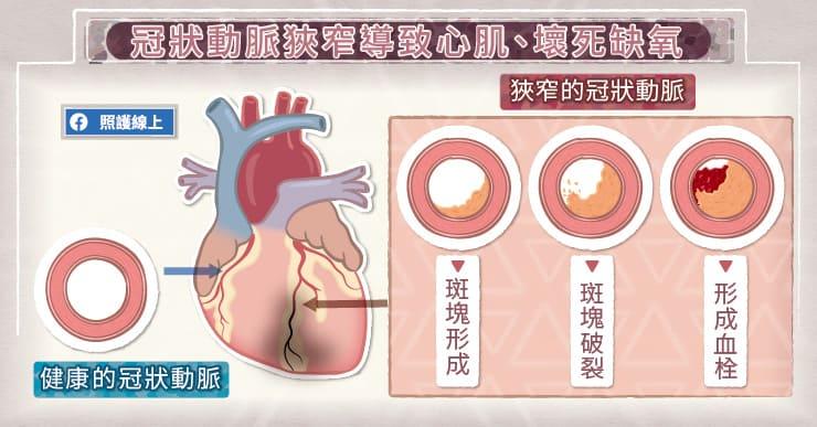 冠狀動脈狹窄,導致心肌缺氧壞死