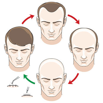Hair Transplants Can Offer A Permanent Hair loss Solution