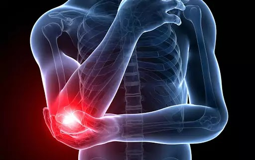 The End of Elbow Pain | Nick Rana