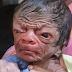 Menino 'Benjamin Button': Bebê nasce com aparência de idoso