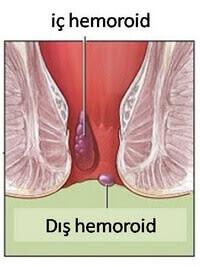iç hemoroid dış hemoroid