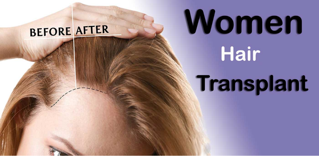 Important Things About Hair Transplants