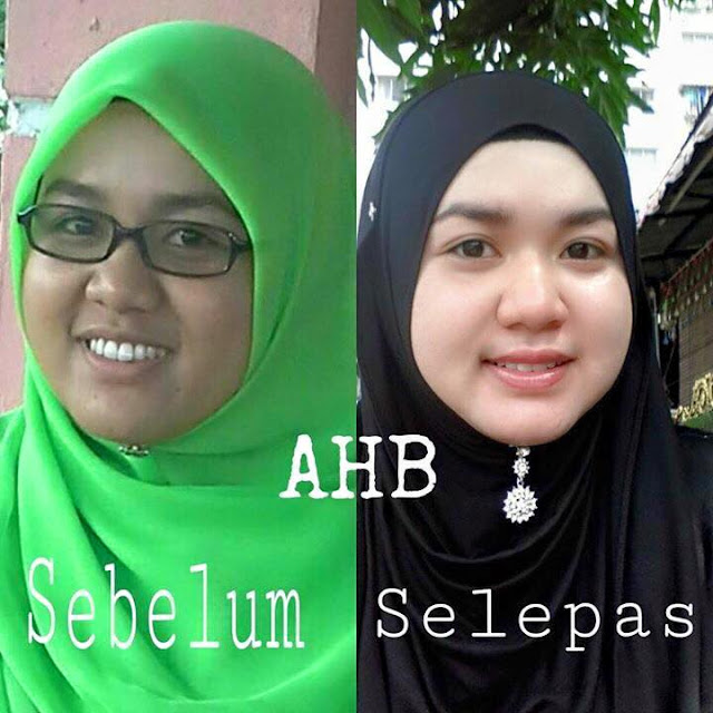 testimoni ah beauty