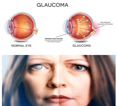 Cara Mengatasi Mata Glaukoma Secara Efektif, Aman Tanpa Efek Samping