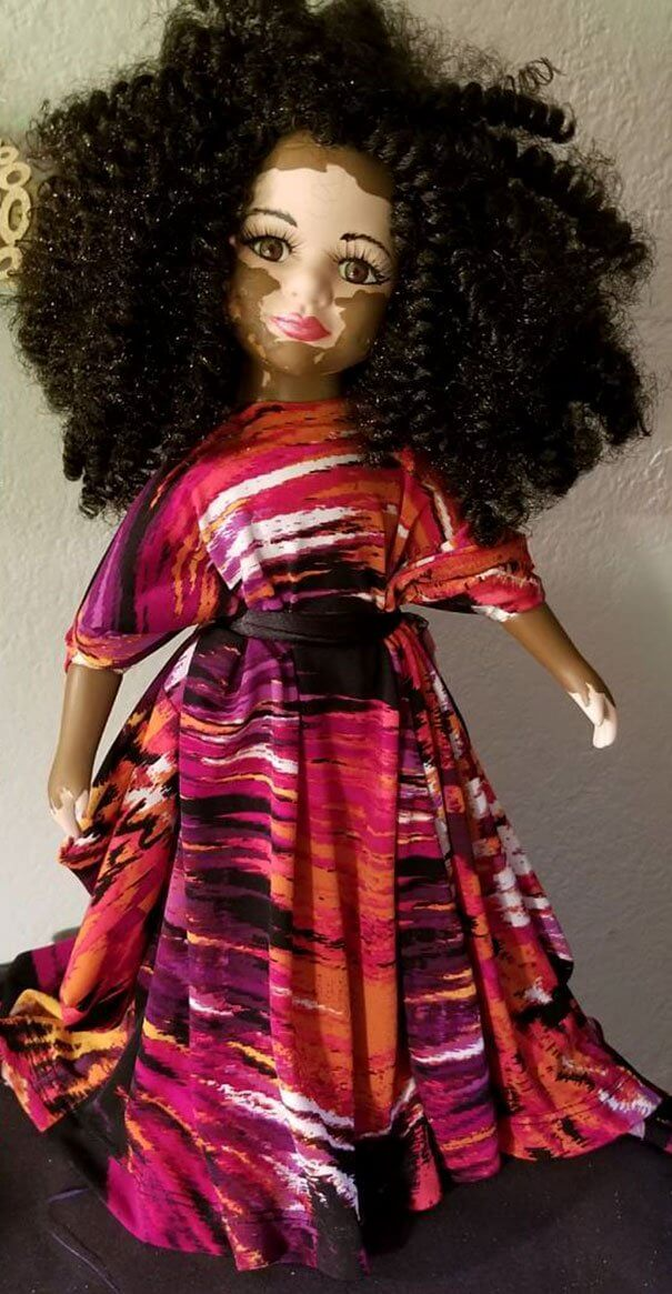 Artist Creates Dolls With Vitiligo To Support Children Who Have This Skin Condition