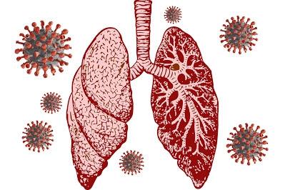 كورونا مرض خفيف إلى متوسط في الجهاز التنفسي العلوي