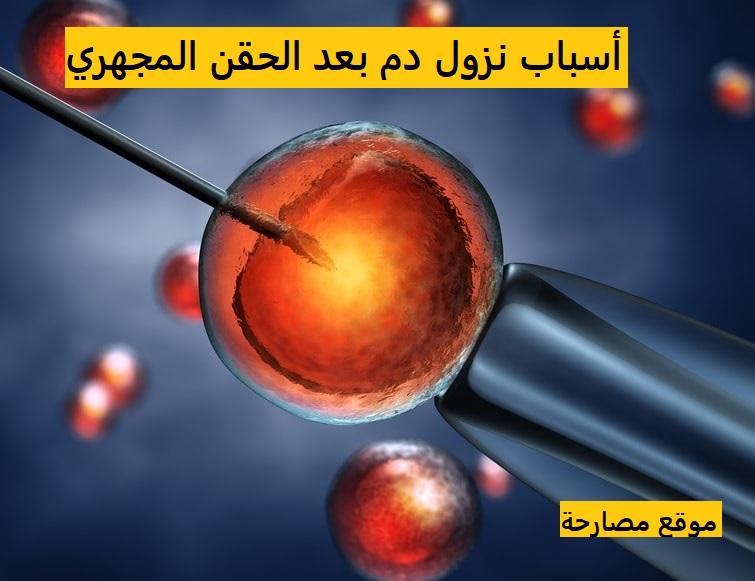 أسباب نزول دم بعد الحقن المجهري