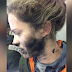 Woman suffers burns to her face and hands after her headphones caught fire during flight
