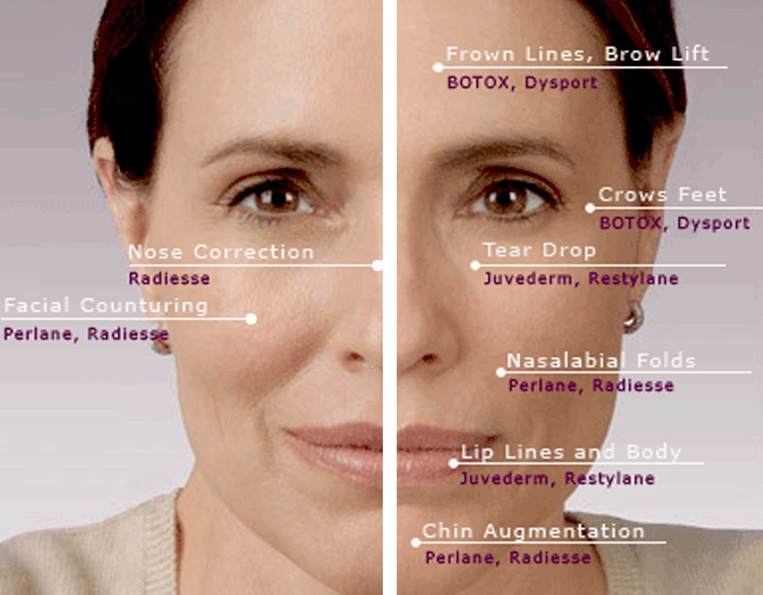 Erase your age with BOTOX!: FILLERS VS  BOTOX