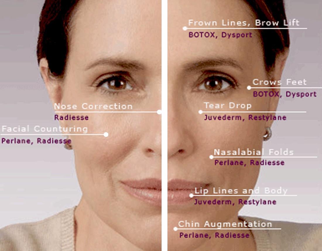 fillers vs botox [ 1100 x 858 Pixel ]