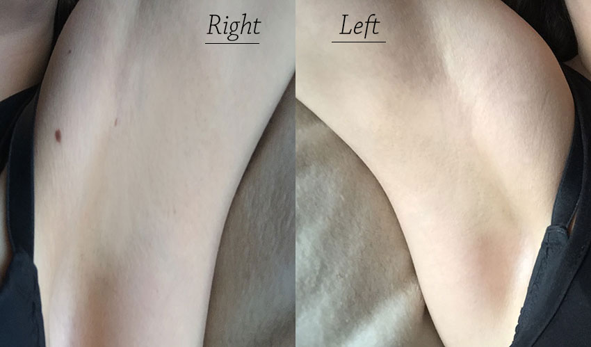 laser hair removal - photos
