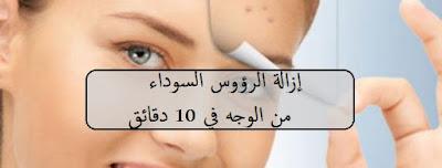 إزالة الرؤوس السوداء من الوجه في 10 دقائق