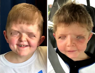 Children living with Apert syndrome picture