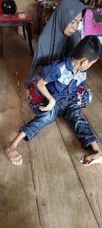 Bocah Lumpuh di Bulupoddo tidak tersentuh Bantuan'Pemerintah Kemana?