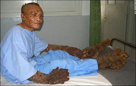 Covjek 'Drvo' neobicna bolest napala covjeka u obliku drveta?!