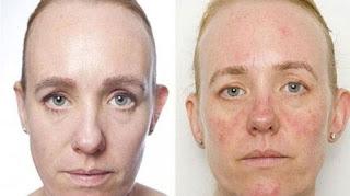 Soin magique pour tous les problèmes de la peau : Crème purifiante zéro Problème