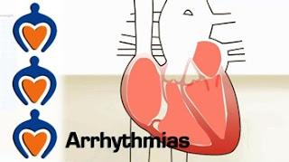 Arrhythmias are Abnormal Heartbeats