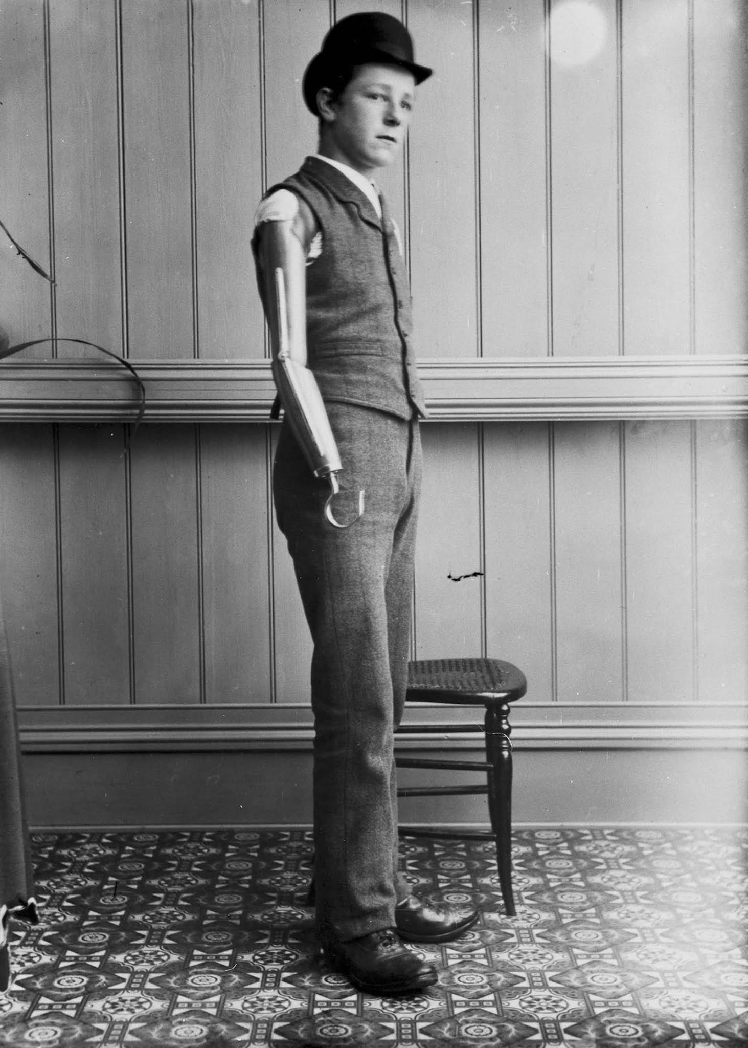 The extraordinary early prostheses made by James Gillingham, 1900