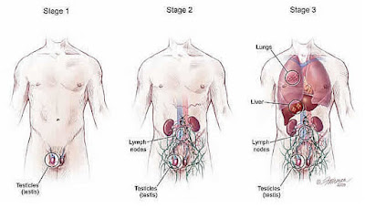 Stages of Testicular Cancer Symptoms
